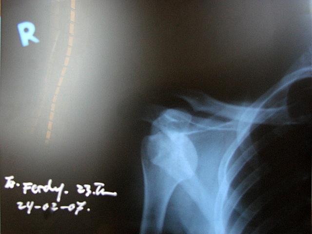 X-Ray Dislokasi Bahu Kanan